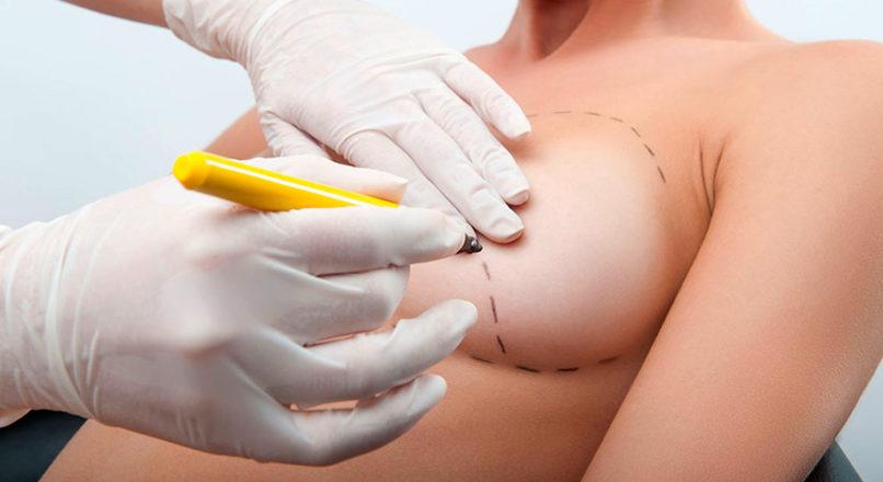 Mamoplastia (Aumento Mamario con Implantes)